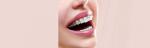 [ทำนายฝัน-ตัวเลข] ฝันว่าคุณเหล็กจัดฟัน,ฝันว่าคุณใส่เหล็กดัดฟัน