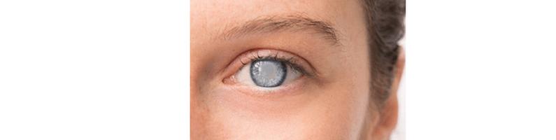 [ทำนายฝัน-ตัวเลข] ฝันว่าดวงตาของคุณเป็นต้อกระจก